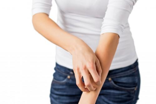 atopiki dermatitida